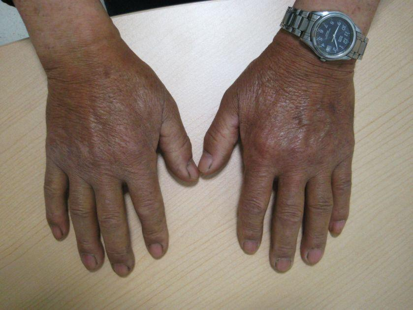 The TOP 10 Hand Signs in Diabetes Mellitus – type 1 ...