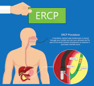 ERCP.png